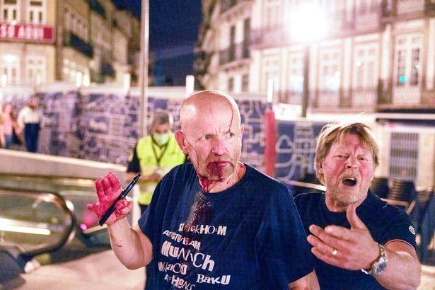 可怕!曼城切尔西球迷大打出手 满脸是血被送医院