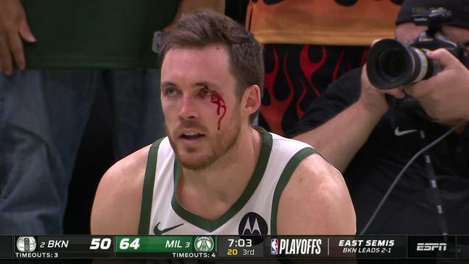 惨烈!康诺顿遭哈里斯肘击眉骨飙血 裁判竟没吹哨